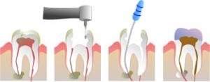 auburn dental